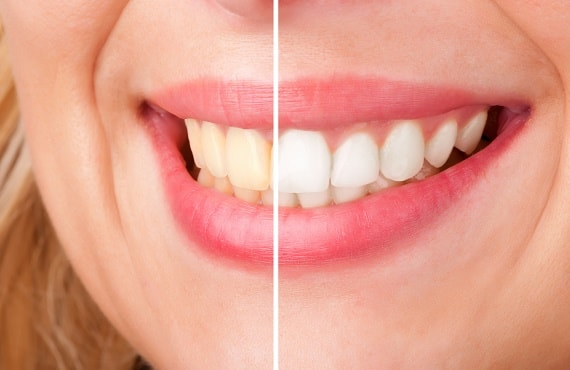 Dentist & Teeth Whitening